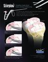 Knee Scorpion™ - Simplified, Single-Portal Suture Passing and Retrieving