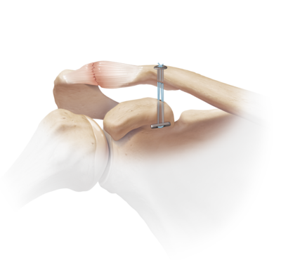 Acromioclavicular joint separation 1 large