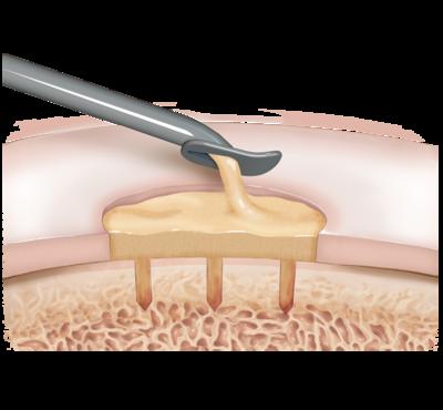 Biocartilage 2 large