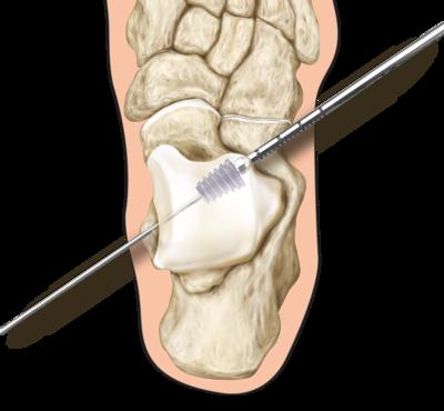 Prostop arthroeresis 0 large